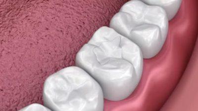 Dental Sealants – Effective option to help prevent cavities