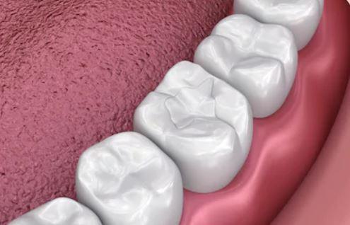 Dental Sealants - Effective option to help prevent cavities