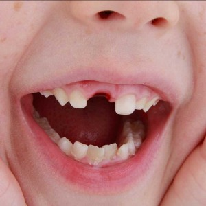 What Must Parents Do When a Child's Tooth is Knocked Out?