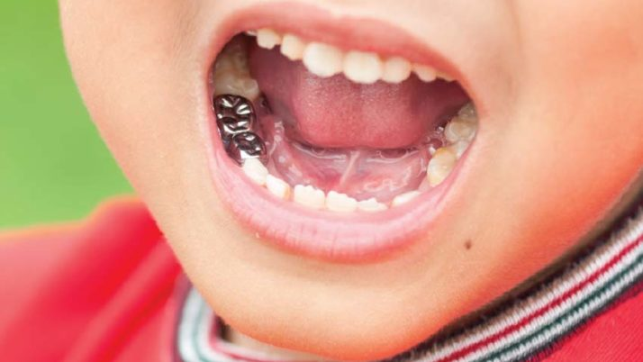 When Do Baby Teeth Need Crowns?