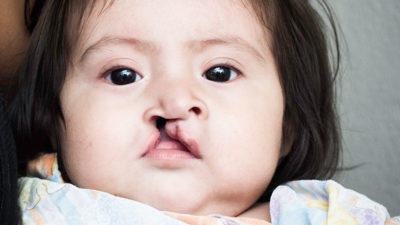 Cleft Lip and Cleft Palate in Children : All you need to know