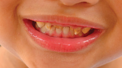Teeth Grinding Or Bruxism Remains With Children Even As They Grow