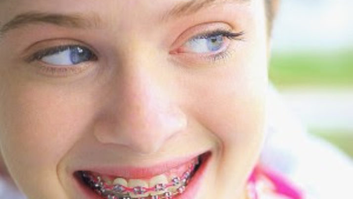 Types of Braces for Kids and Children