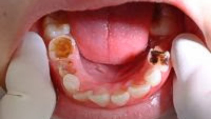 What causes dental cavities?
