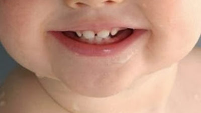 It's never too early to start preventing tooth decay