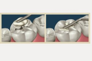 What are the Treatments available to treat dental cavities in Toddlers and Children?