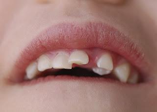 Dental Emergencies - Dental Impaction Management and Treatment