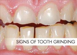 Bruxism – Teeth Grinding Isn't Always Harmless