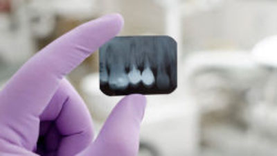 Dental X-Rays and Their Importance in Correct Diagnosis