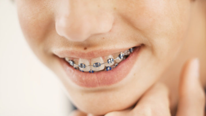 Correcting Children Teeth with Dental Braces : Type, Cost  & Procedure