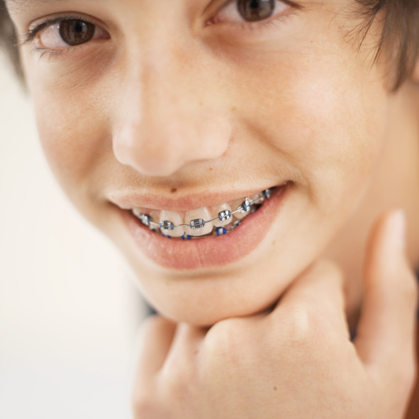 Correcting Misaligned Teeth with Dental Braces