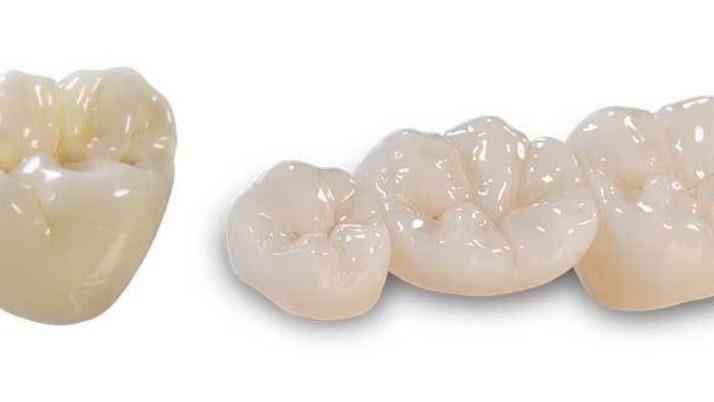 Zirconia Dental Crowns – Advantages, Procedure, Cost