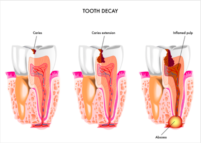 Understanding the 5 Stages of Tooth Decay & Treatment