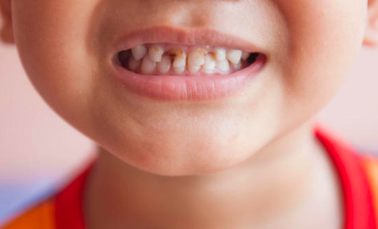 5 Stages of Dental Decay and Treatment