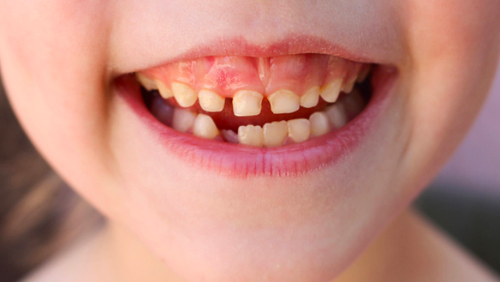 How Bacterial Plaque Causes Dental Caries and Tooth Decay