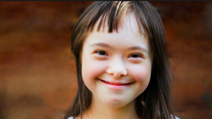 Dental Care in Children with Down Syndrome