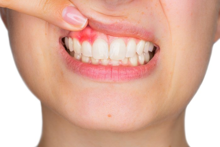 Does Your Child Have Gum Disease?