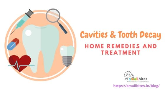 Cavities & Tooth Decay: Home Remedies and Treatment